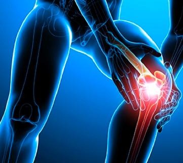 Caso clínico: Dolor de rodilla
