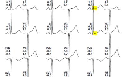 Caso clínico: Taquicardia ventricular