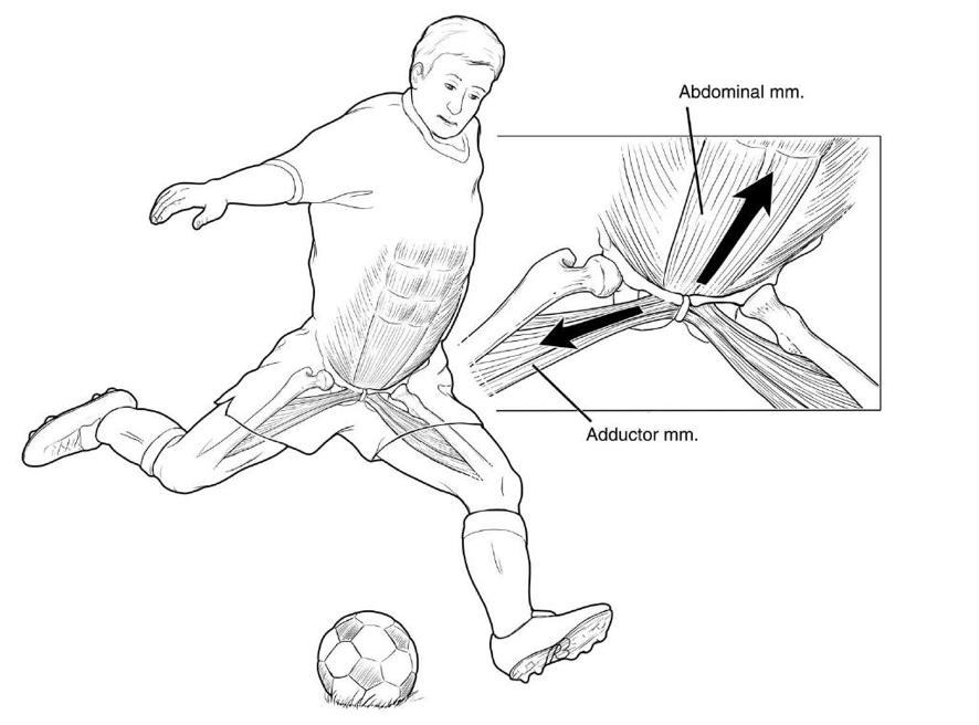 Caso clínico: pubalgia
