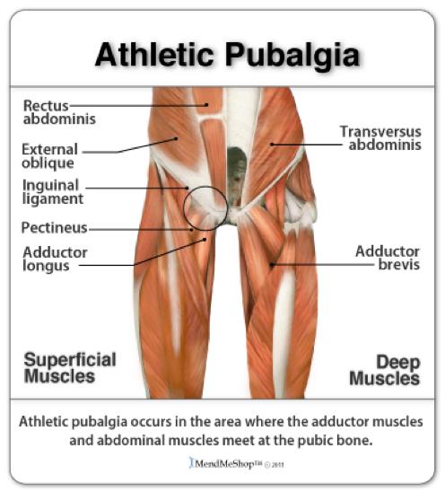 Caso clínico: pubalgia | Jeroni Llorca